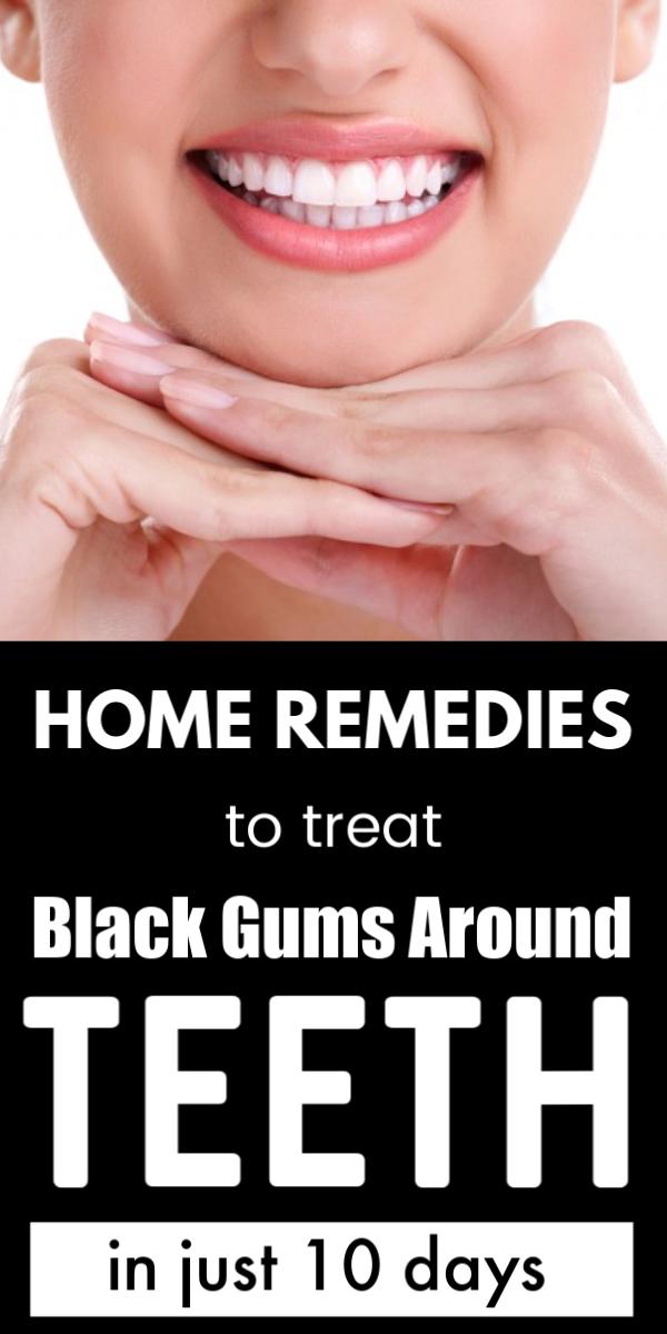 Black Gums Around Teeth Causes Best Home Remedies To Treat It Naturally Teeth Teethwhitening Oral Oralcarepro Oral Black Gums Oral Care Routine Teeth