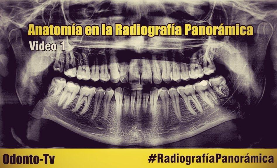 radiografia-panoramica   Proyectos que debo intentar   Pinterest ...