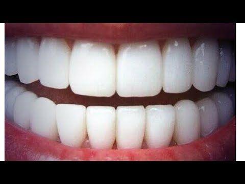 diy dents blanches fabriquer son rem de naturel aux. Black Bedroom Furniture Sets. Home Design Ideas