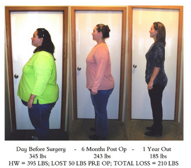 Pin on Weight Loss Surgery Before & After Photos