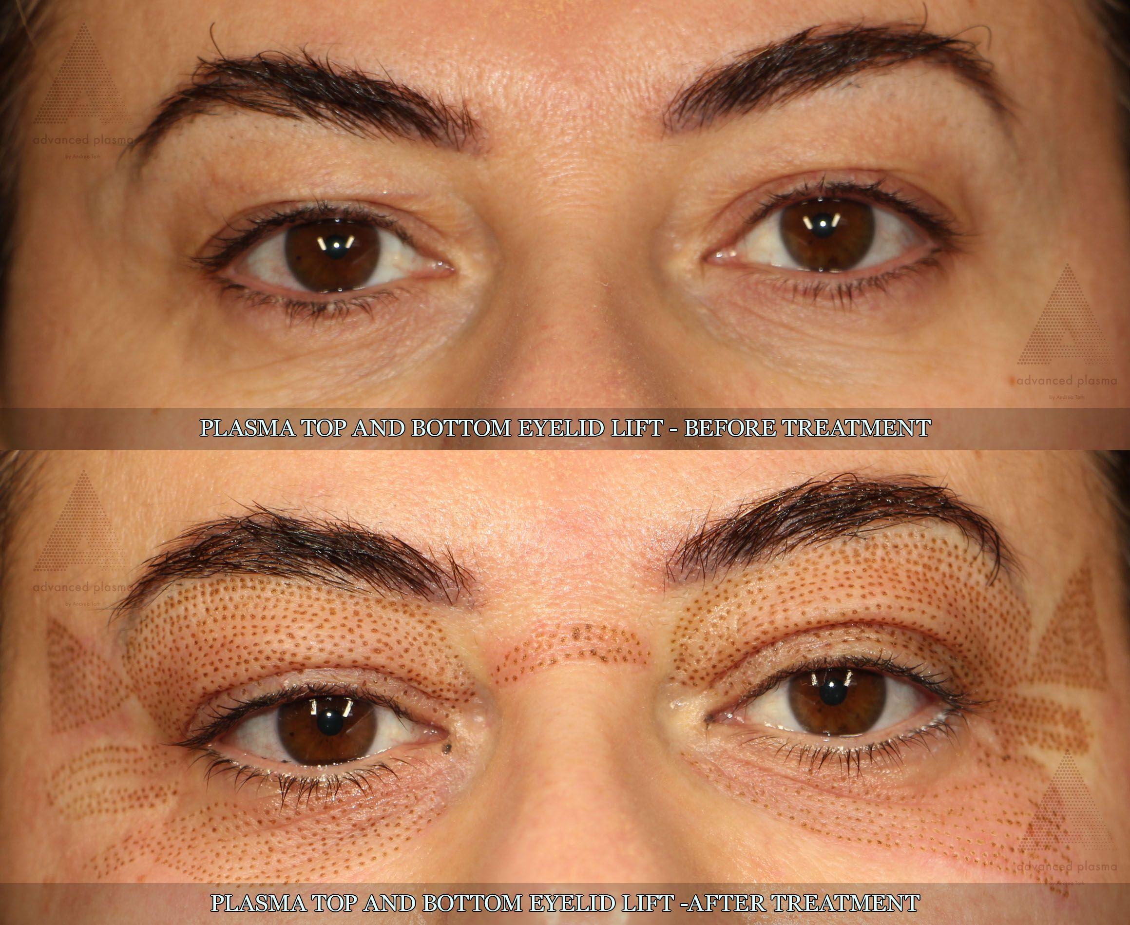 Pin By Angela Loiselle On Plasma Skin Tightening Treatments Eyelid Lift Radio Frequency Skin Tightening