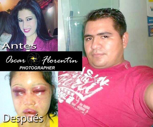 El suboficial de Policía Carlos Diosnel Delpadre Mendoza (28) fue imputado por Lesión, Tortura y Violencia Familiar