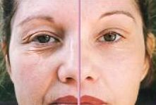 Learn how to tone your cheek bones without surgery, fillers, or