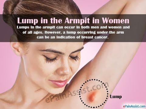 Lump In The Armpit Armpits Armpit Rash Armpit Cyst