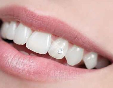 Pin On Les Bijoux Dentaires