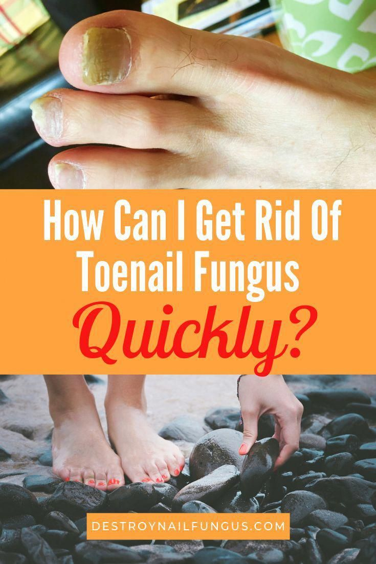 how to get rid of yellow toenails reddit