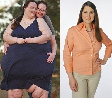 Side effects of weight loss injections