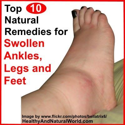 5f30cfd089624bd4f17254cdc0559c3d - How To Get Rid Of Swollen Toes In Winter