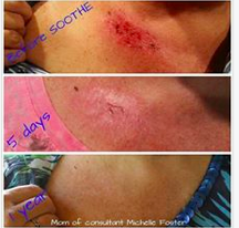 Soothe Helps With Radiation Burns Rodan And Fields Soothe Rodan And Fields Moisturizer For Sensitive Skin