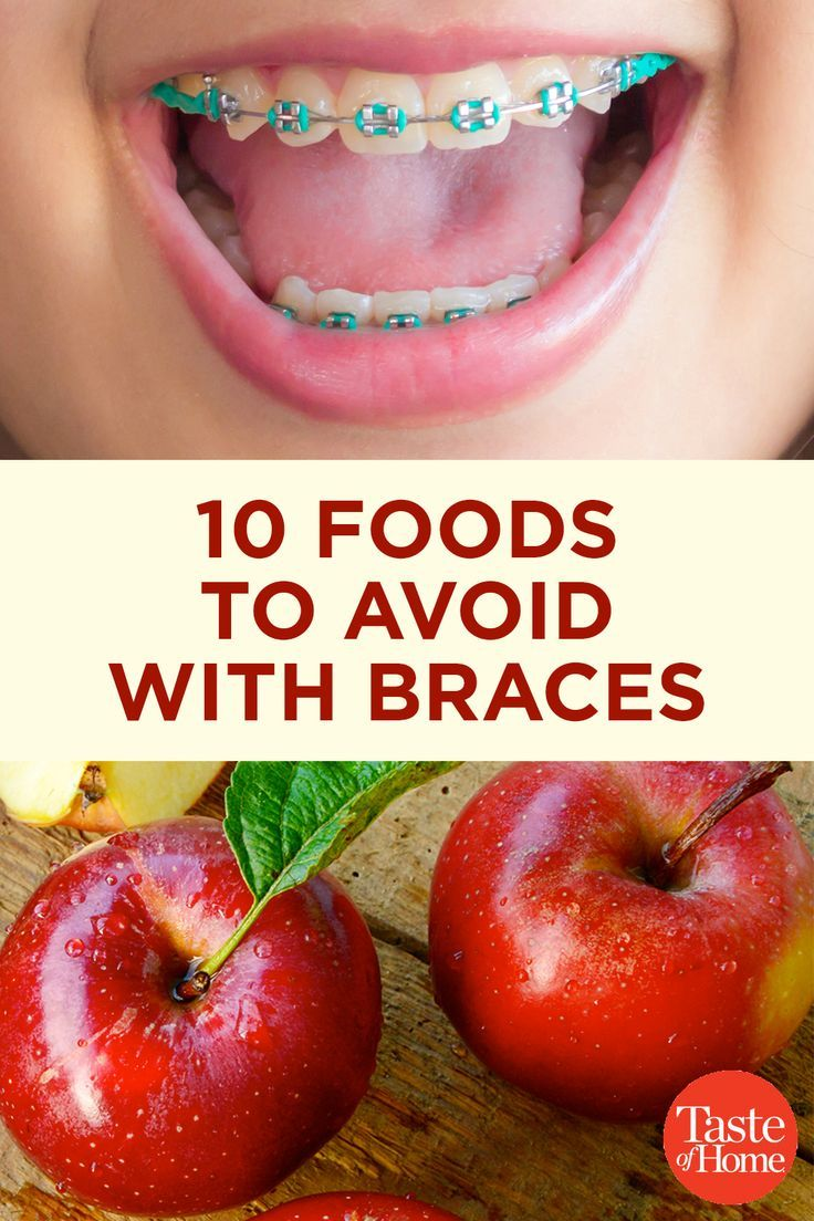 soft foods to eat with braces for dinner