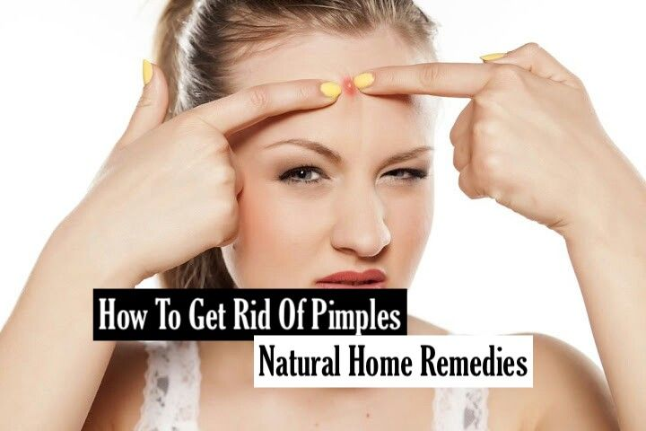how to get rid of birthmarks on face at home