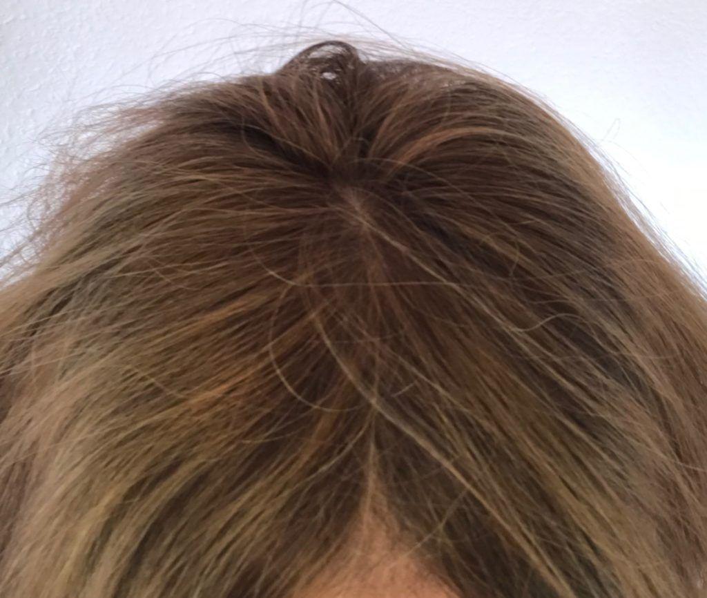 Haarausfall frau bei frisur Haarausfall Frauen: