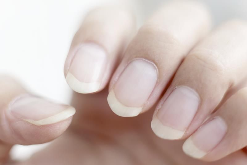 Are Ridged Nails and Dry Skin a Sign of Vitamin Deficiency | HEALTH ...