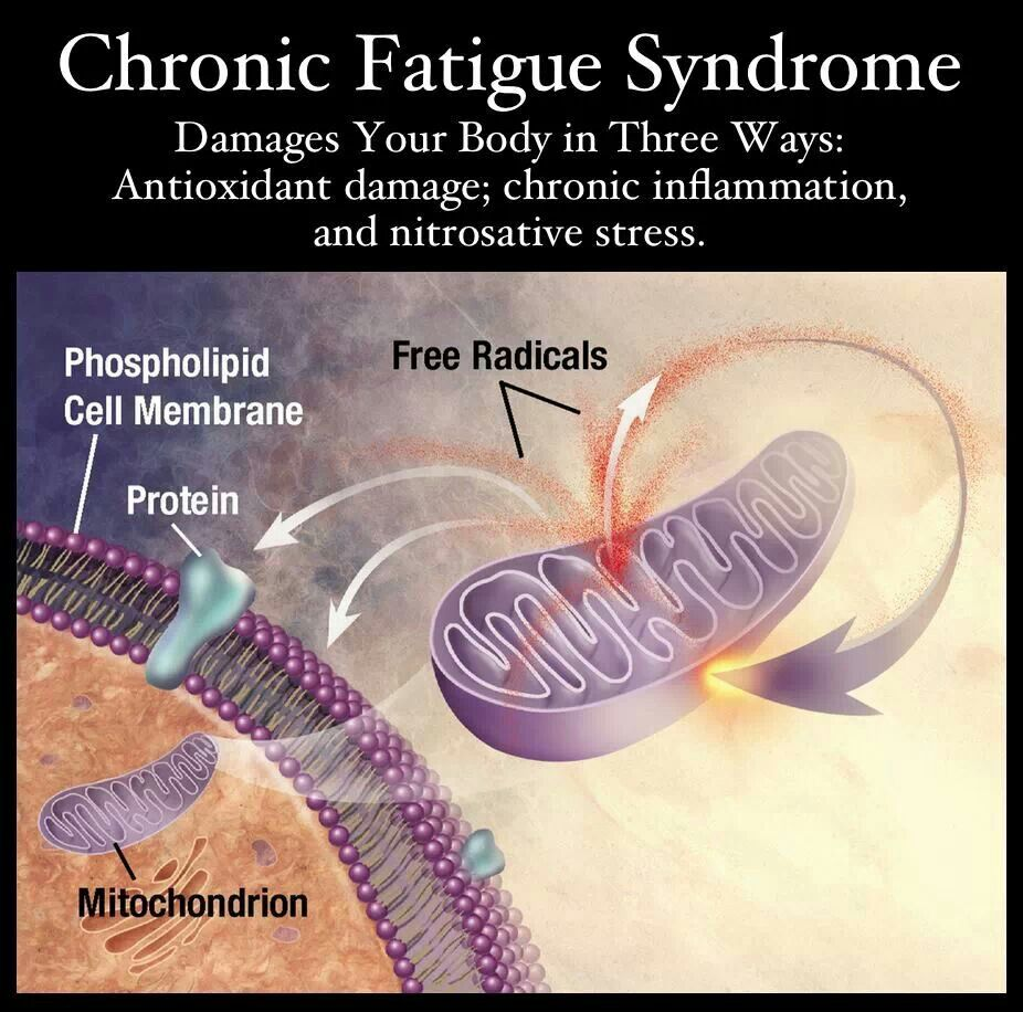 Chronic Fatigue Syndrome (CFS) in Men