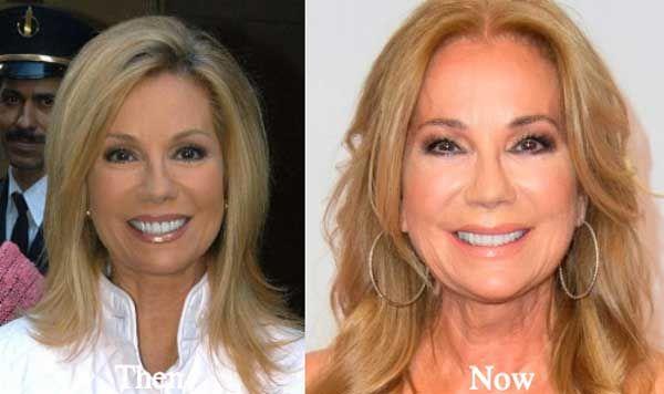 Kathy Lee Gifford Plastic Surgery Hair Implants Plastic Surgery Kathie Lee Gifford