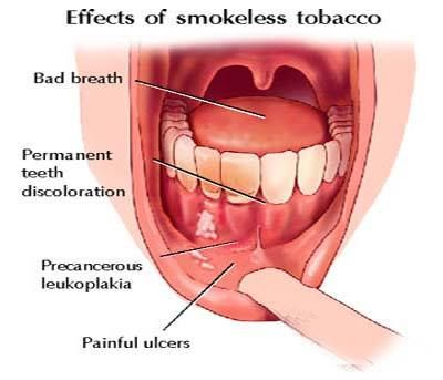 Effects of Smokeless Tobacco on Oral Tissues | Dental Care
