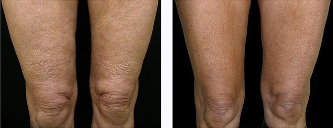 5f4c730e6f3ef5507331a0bb1e43d3ce - How To Get Rid Of Crepey Skin On Knees