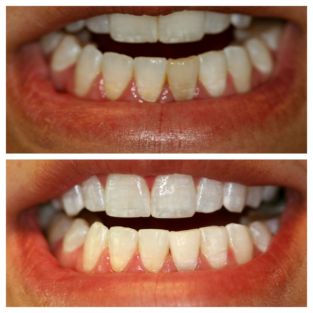 Internal Bleaching Can Be Done On A Root Canaled Tooth That Is