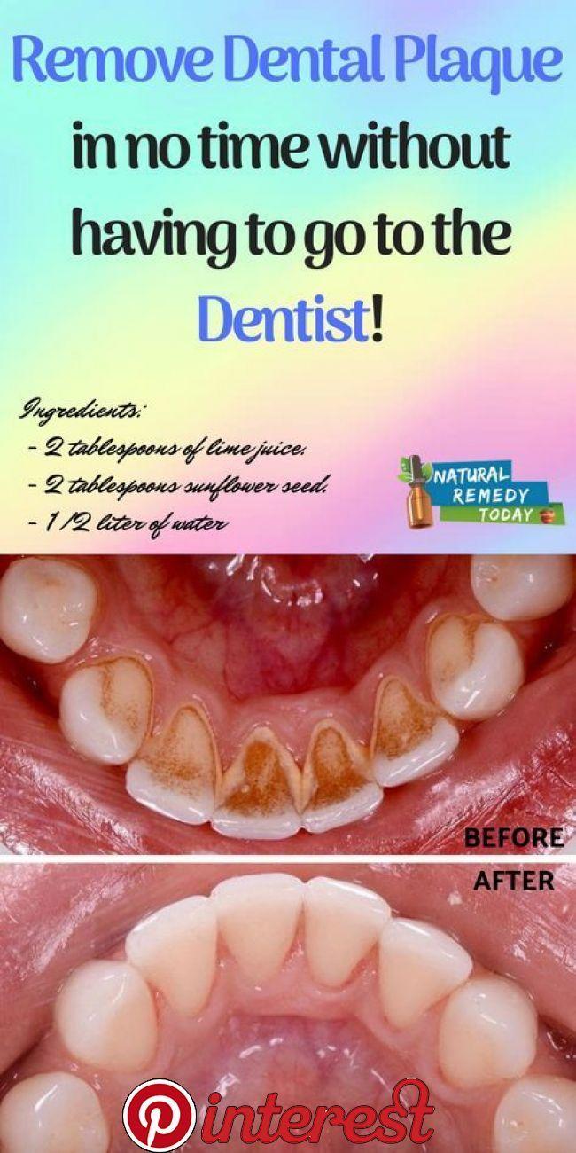 Aromatic Oral Health Diy