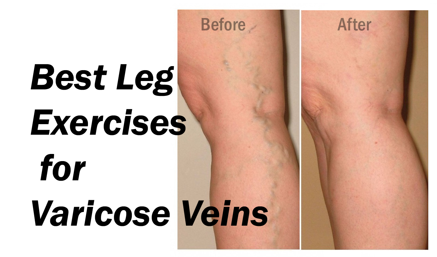 how to help varicose veins in legs