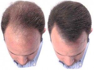 can saw palmetto regrow hair