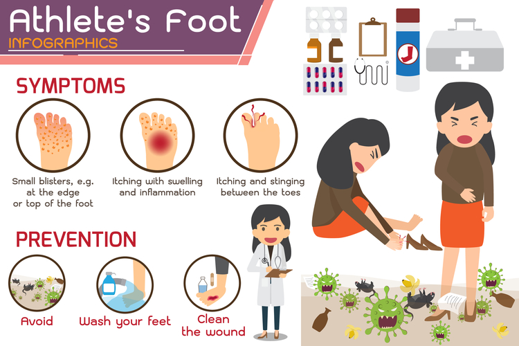 How To Remove Athlete S Foot From Carpet Updated In 2020 Athletes Foot Infographic Hong Kong Foot