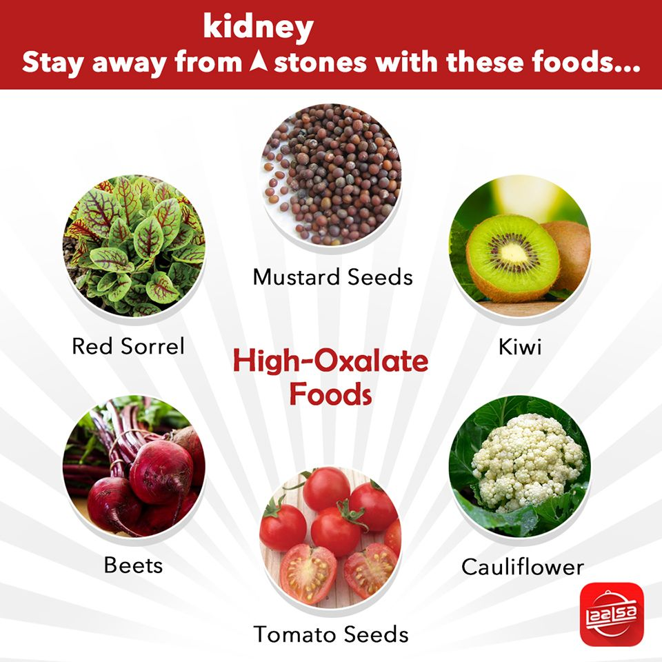What Foods Can Cause Kidney Stones
