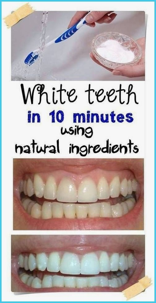 The All-Natural Way To Get Super White Teeth #Beau