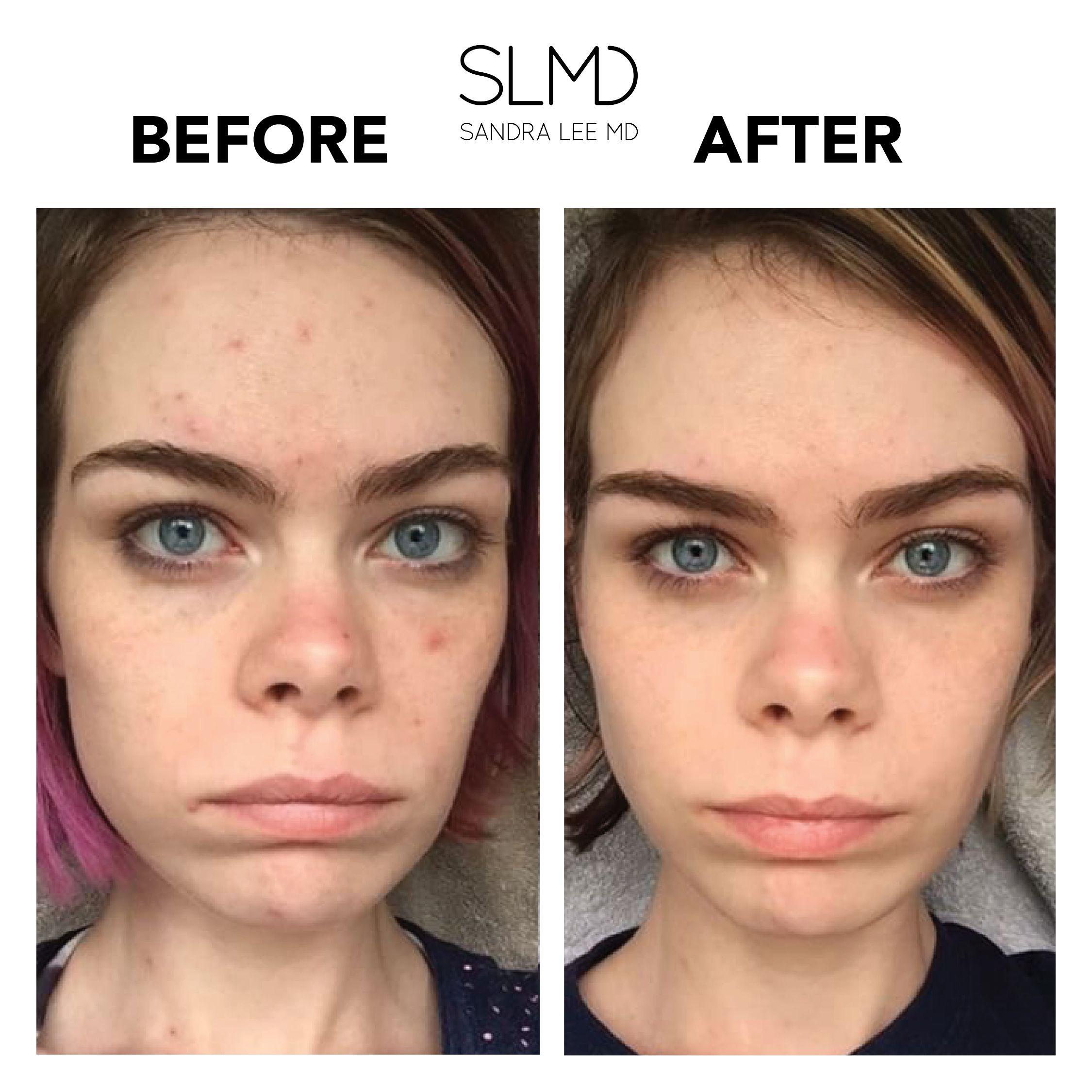 Acne System Acne Unclog Pores Hormonal Breakouts