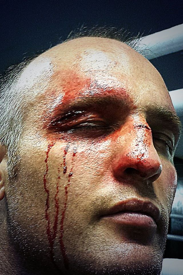 Sfx makeup boxing wound on boxer Brain Magee Copyright ...