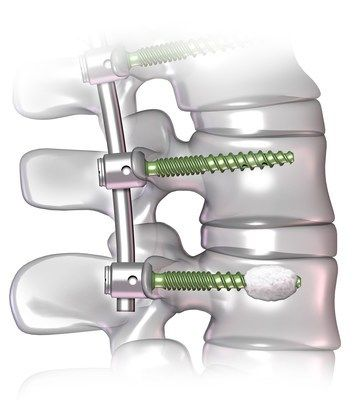 DePuy Synthes Launches New Fenestrated Screw Systems