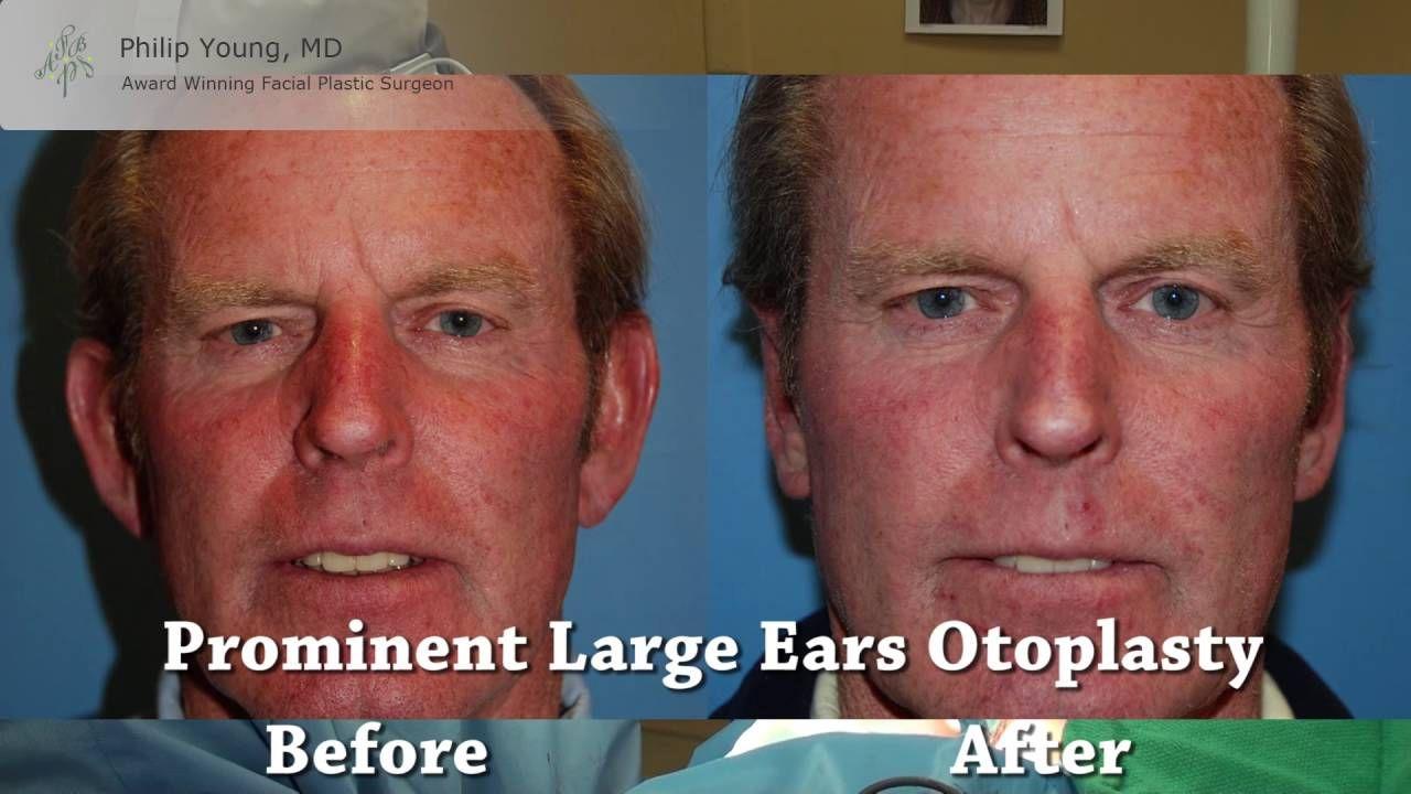 Pin By Aesthetic Facial Body Plastic On Otoplasty  Ear Plastic Surgery Seattle  Bellevue  Ear -9010