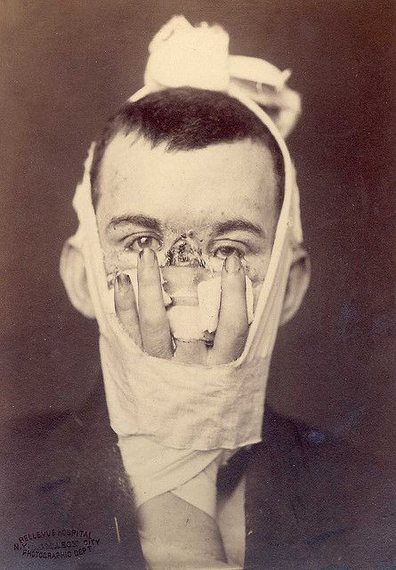 "Using one's own finger to replace their nose. A facial reconstruction technique used during WWI & WWII. Caption reads: ""Rhinoplasty. Loss of nose due to an injury, and replacement by a finger in 1880. Surgery by Dr. E. Hart, photo by OG Mason, both of Bellevue Hospital, NY."""