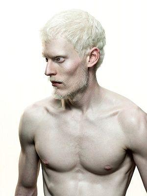 Naked albino men