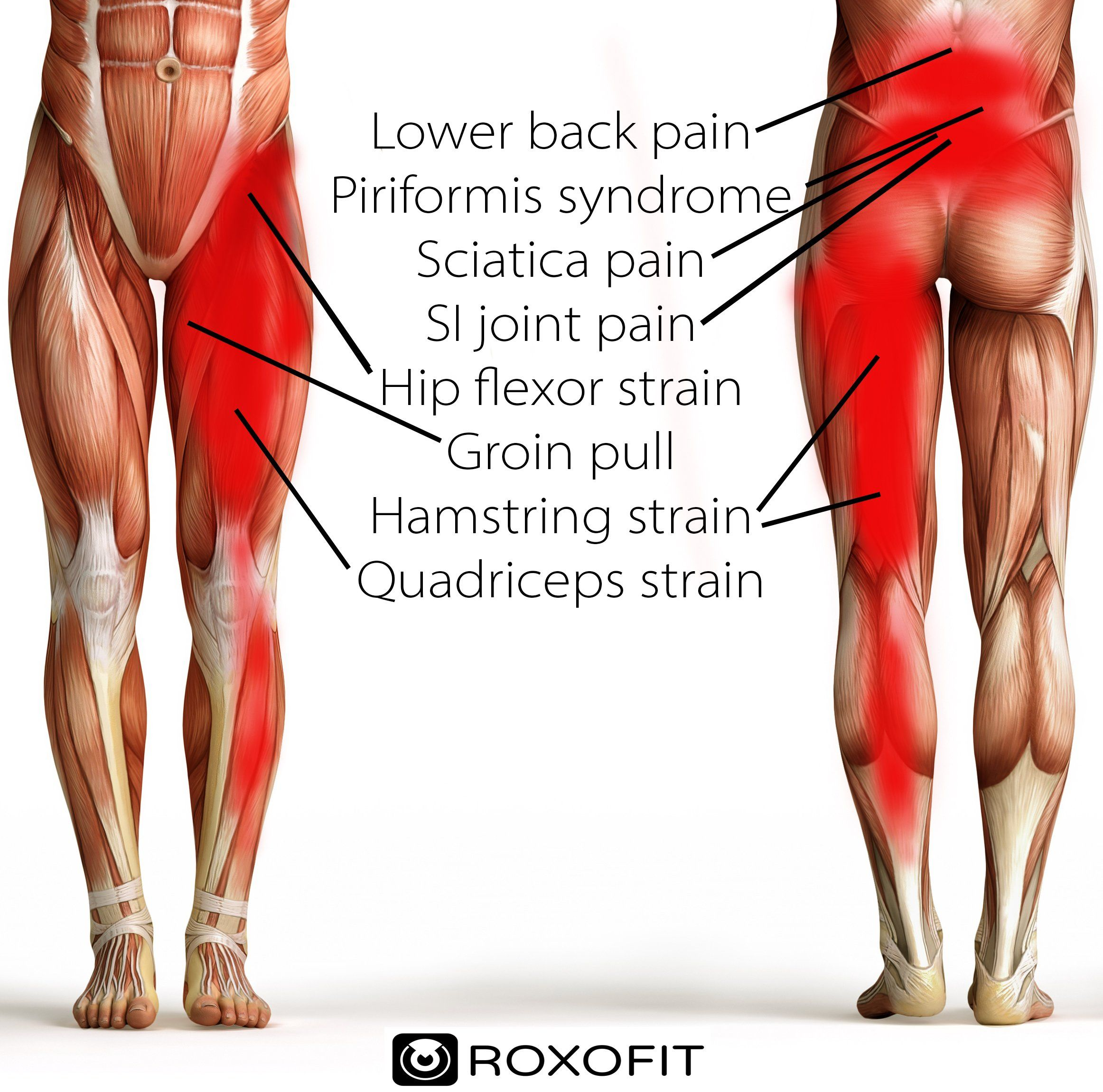 46++ Pulled thigh muscle wrap trends