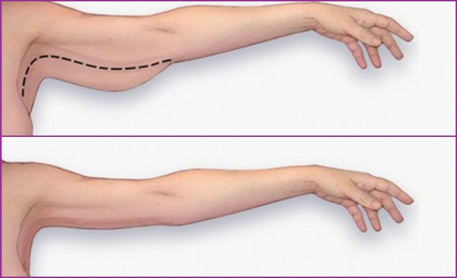 get slimmer arms how to get rid of arm cellulite exercise