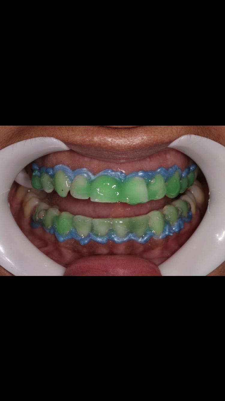 Clareamento Dentario Feito Em Consultorio Clareamento Dental