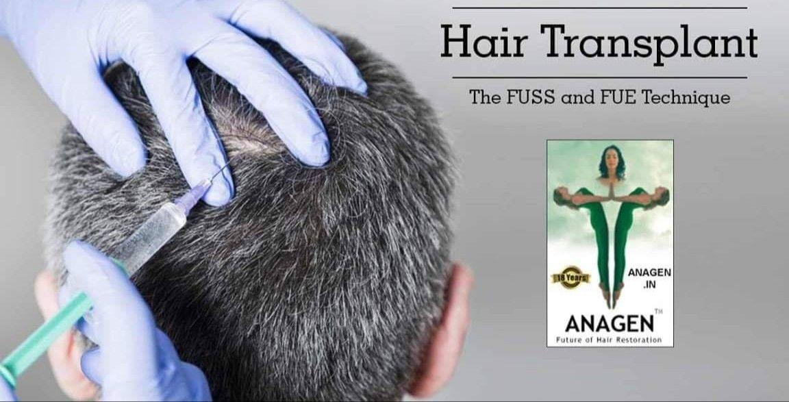 Pin on Anagen Hair Transplant Center Mumbai