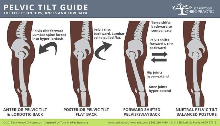 Fixing Posterior Pelvic Tilt Health Wealth Beauty In 2018