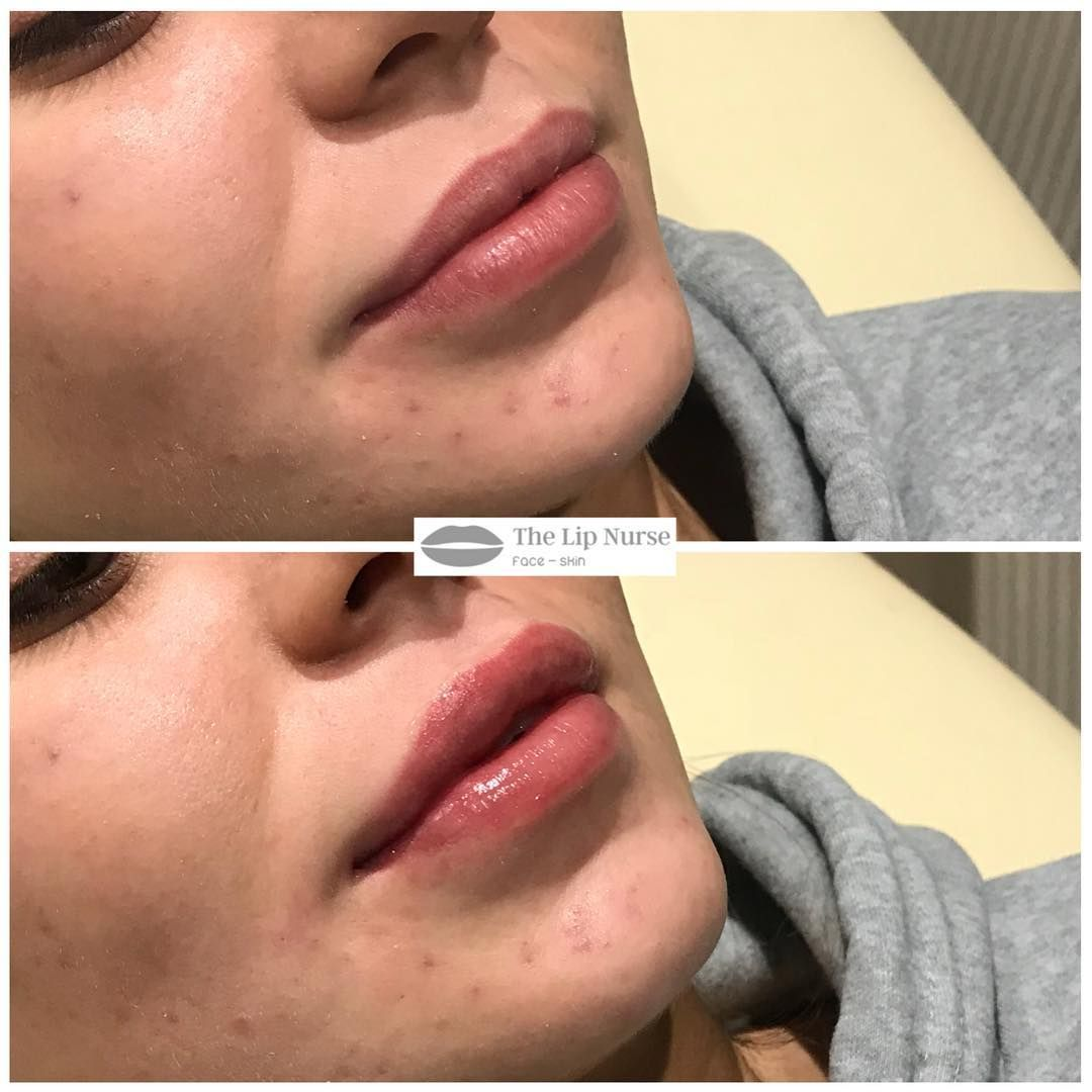 0 5ml Juvederm Volift Prices start from 140 (0 5ml) Lip Fillers are