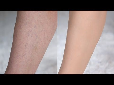 How To Cover Up Spider Veins Dermablend Leg Makeup Camouflage Makeup