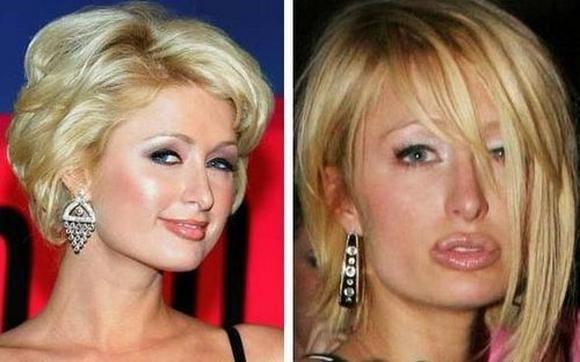 Resultado de imagen para aumento de labios fail