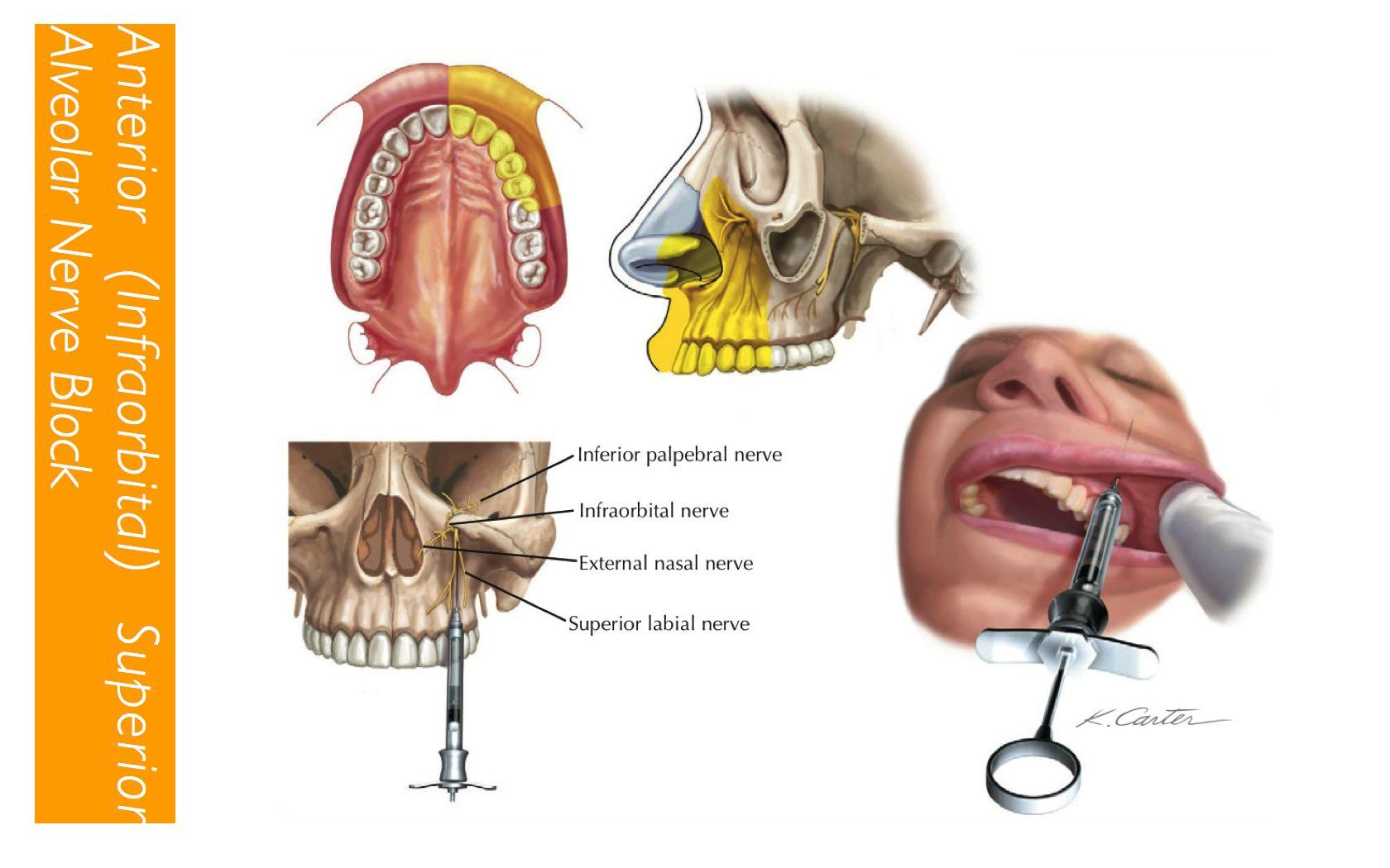 ASA (infraorbital) Nerve Block: Anterior Teeth to MB root of Mx 1st ...