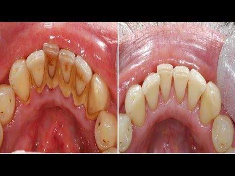 How To Get Rid Of Dip Stains On Teeth