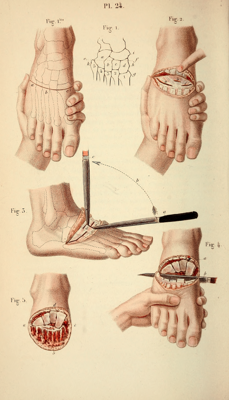 small resolution of  operative surgery operative manuals surgery operative anatomy drawing illustration vintage 1800 body human art amputation diagram