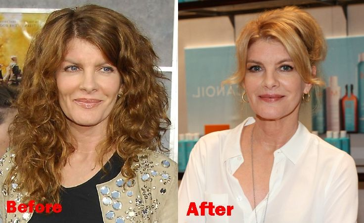 Rene Russo Plastic Surgery Before And After Face Photos Plastic Surgery Face Photo Face Lift Surgery