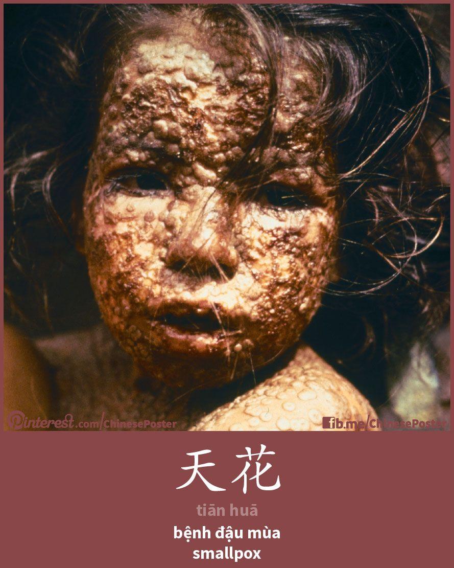天花 - Tiānhuā - bệnh đậu mùa - smallpox