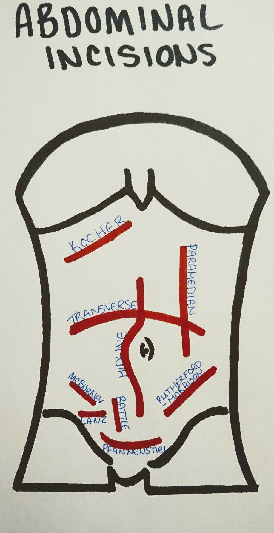 Abdominal Incisions Nursing Pinterest Medical Surgical