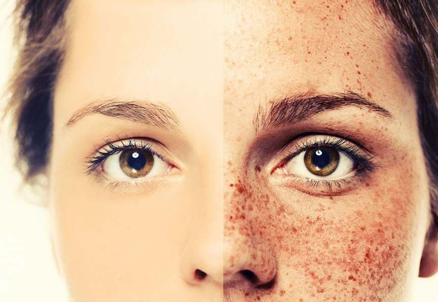 Removing Freckles From Face Naturally