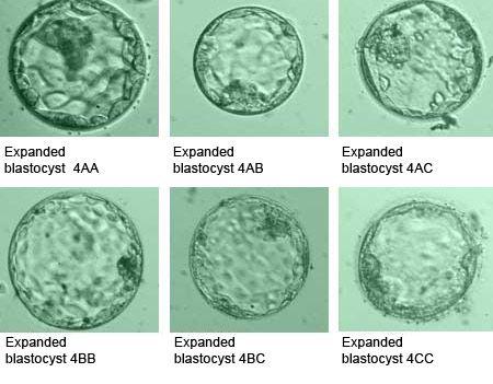 Pin By Indirainfertility Clinic On Blastocyst Embryo Transfer Bet